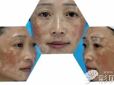 30岁女人脸上长斑_脸上黄褐斑图雀斑图 小姐姐面部黄褐斑图片及5次激光祛斑效果让 ...